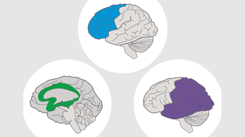 Illustration of three UDL brain networks: affective, recognition, strategic